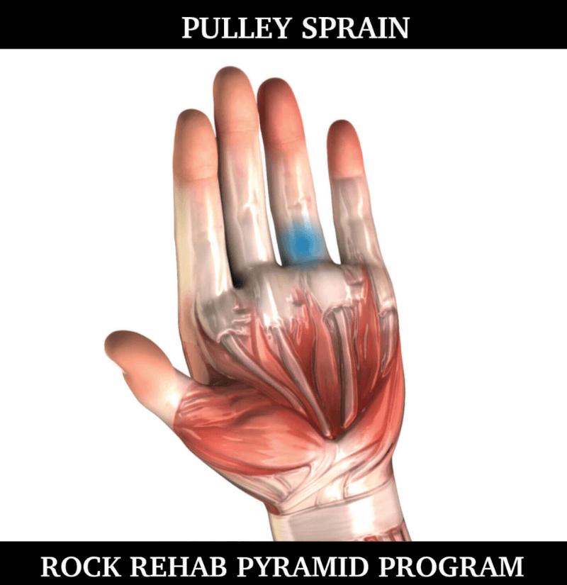 pulley sprain